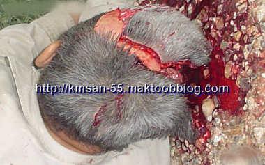 un homme suicide avec fusil de chasse 2 84747-145eca0